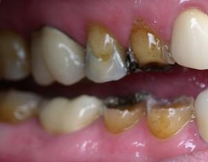 before dental restoration surgery - duxbury ma