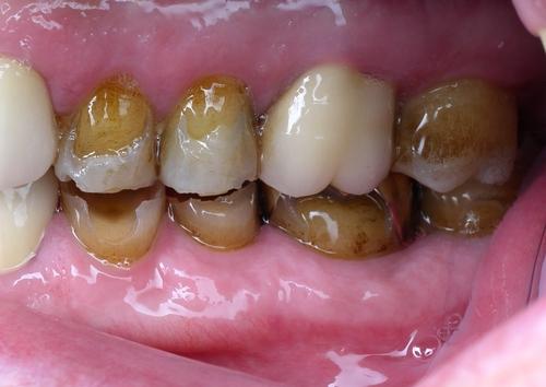 before image of patient teeth - duxbury ma
