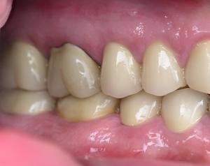 after dental restoration surgery - duxbury ma