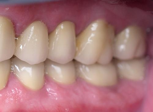 After dental restoration - danbury ma