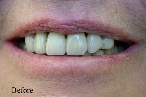 before dental implants & veneers - duxbury ma