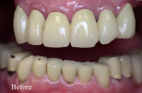 Before image patient in need a dental implants and veneers - Duxbury MA