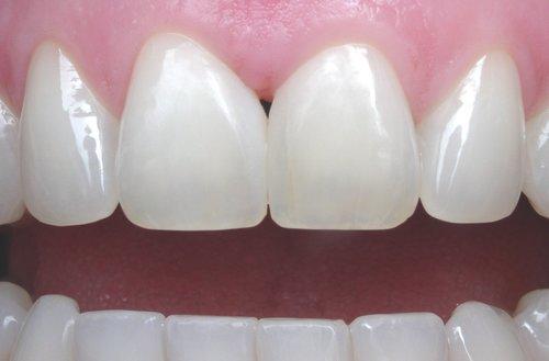 after dental bonding - duxbury ma
