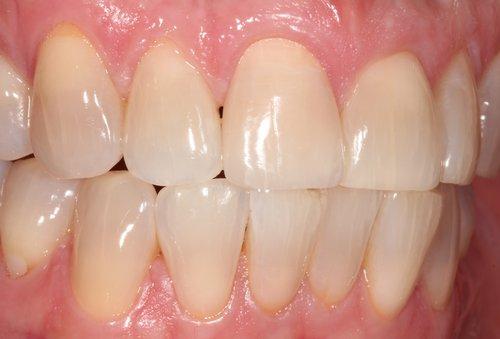 After central incisor veneer - Duxbury MA
