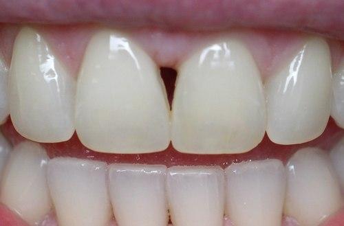 before dental bonding - duxbury ma