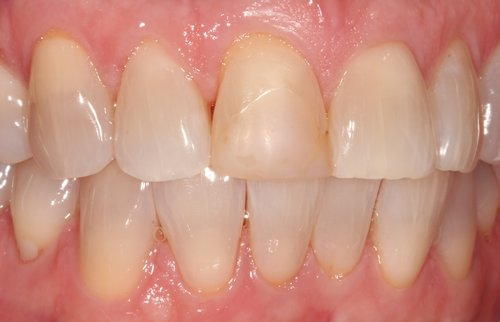 Before central incisor veneer