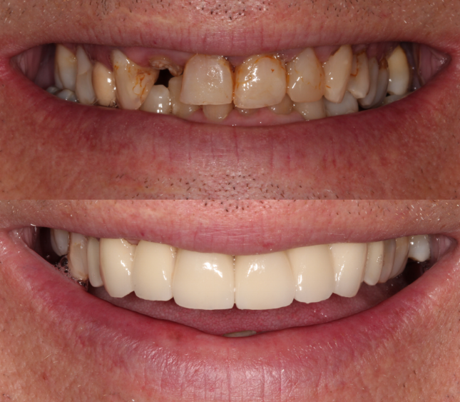 Missing Upper Lateral Incisor & Discolored Teeth - Duxbury MA