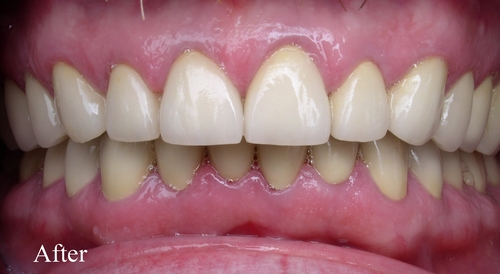 Image of patient's teeth after full dental reconstructive surgery - Duxbury MA