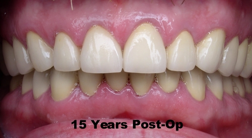 15 Years after Full Mouth Reconstruction Surgery - Duxbury MA