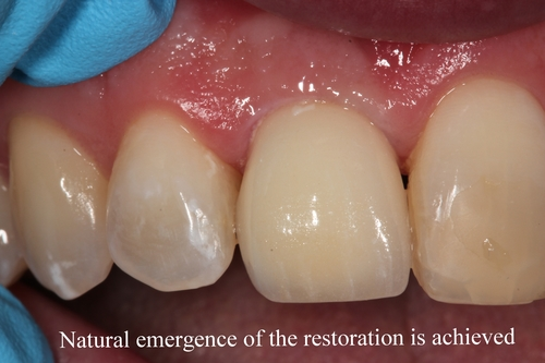 Emergency Central Incisor Restored with Implant Dentistry - Duxbury MA