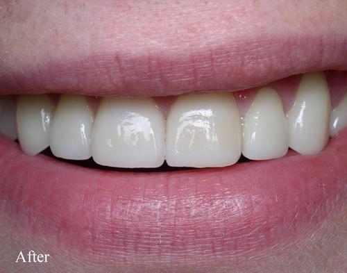 After dental veneers - Duxbury MA