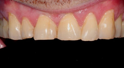 Worn Upper Anterior Teeth