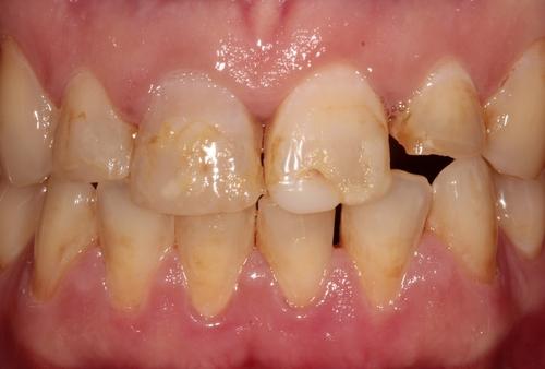 Before Dental implant and veneers