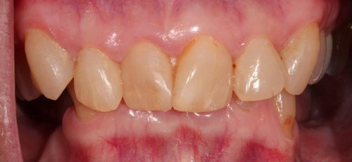 An example of worn & discolored anterior teeth - Duxbury MA