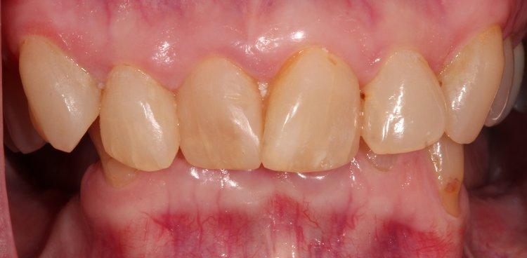 Before upper dental reconstruction surgery - Duxbury MA