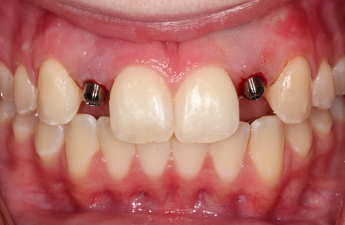 Image of patient with dental post for implants - Duxbury MA