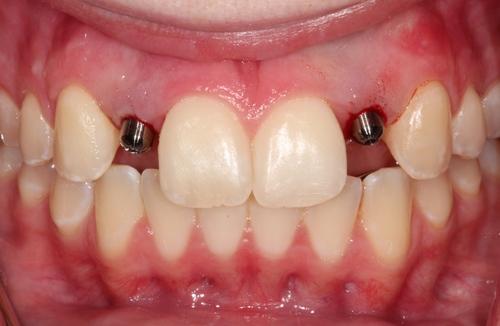 Dental Implants Post - Duxbury MA