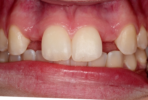 Image patient before dental post have been placed  for permanent implants - Duxbury MA