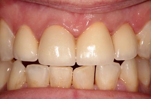 After dental implants and veneers