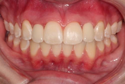 Dental Implant in Duxbury MA