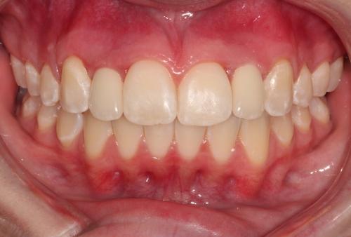 Permenant Implanted Lateral Incisors - Duxbury MA