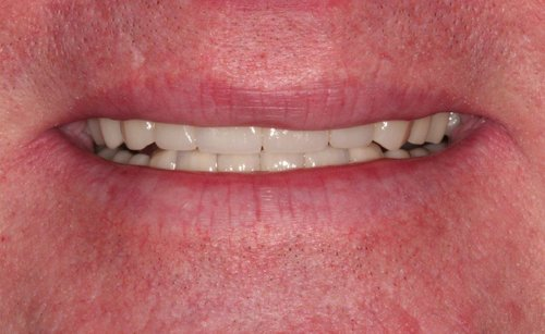 After Image of Full Mouth Reconstructive Proformed on Upper & Lower Teeth - Duxbury MA