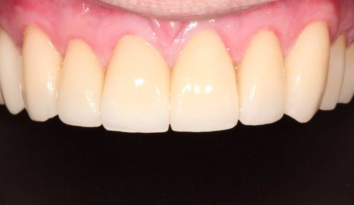 Upper Anterior Teeth Reconstructed To Achieve A Natural Looking Smile