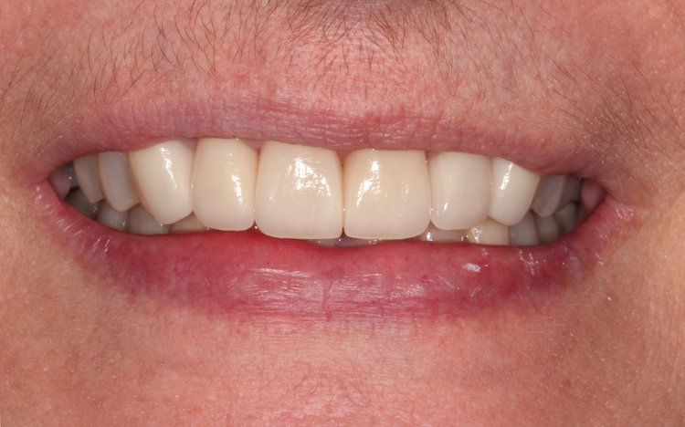 After Dental Reconstructed Surgery - Duxbury MA