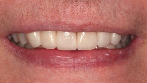 Anterior Teeth Restored To Achieved  A Healthy Natural Looking Smile - Duxbury MA