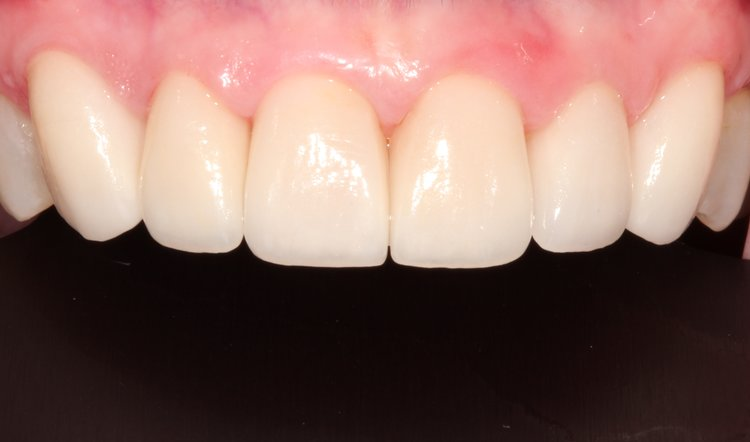 After upper dental reconstruction - Duxbury MA