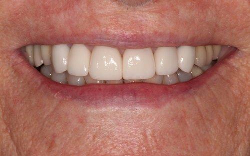 Dental Crown in Duxbury MA
