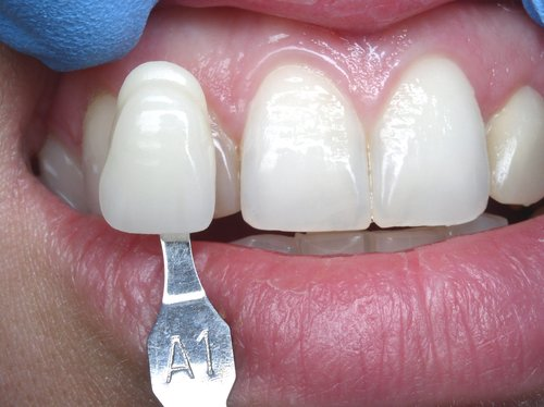 Dental Veneers - Duxbury MA