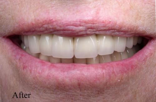 after dental implants & veneers - duxbury ma
