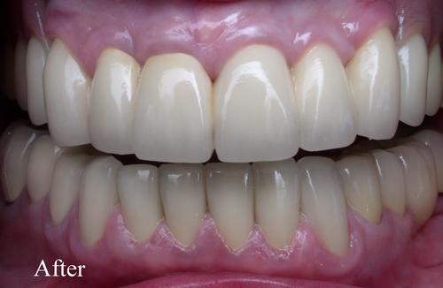 After dental reconstruction surgery - duxbury ma