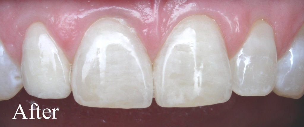 Two porcelain laminate veneers were used on upper central incisors - Duxbury MA