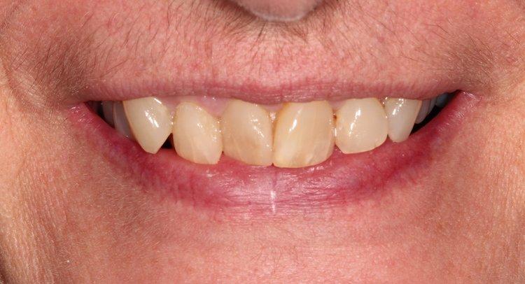 Before Full Dental Reconstruction - Duxbury MA