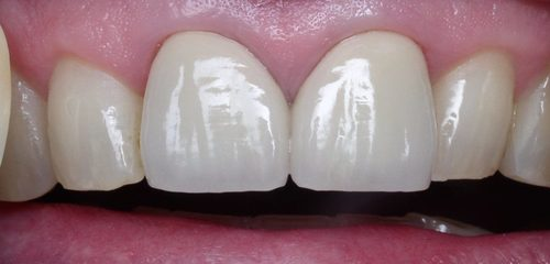 Whitened Lateral & Central Incisor - Duxbury MA