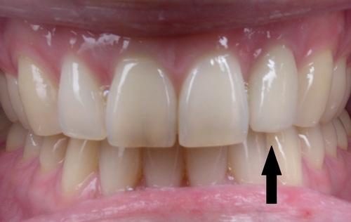 Left Lateral Incisor Implant - Duxbury MA