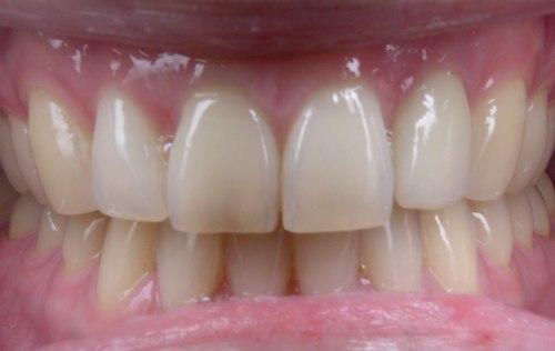Natural looking Dental Implants - Duxbury MA