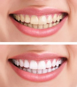 Dental Bone Grafts Are Used To Promote Bone Growth When Using Dental Implants