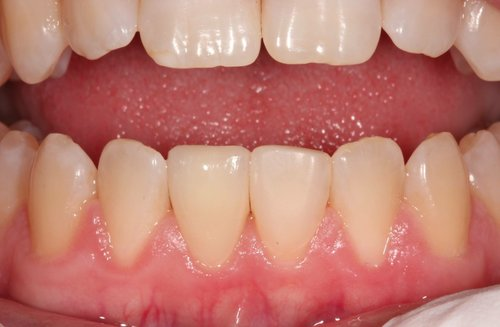 Repaired lower central incisor - Duxbury MA