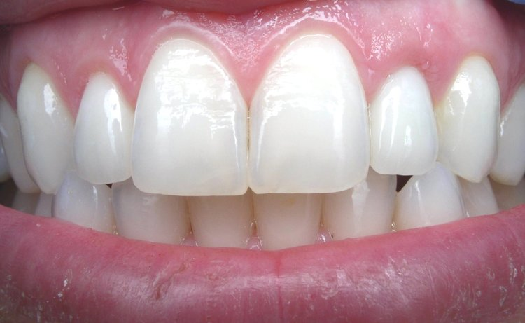 After porcelain veneer tooth is placed - Duxbury MA