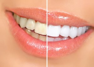 Teeth Whitening - Duxbury MA