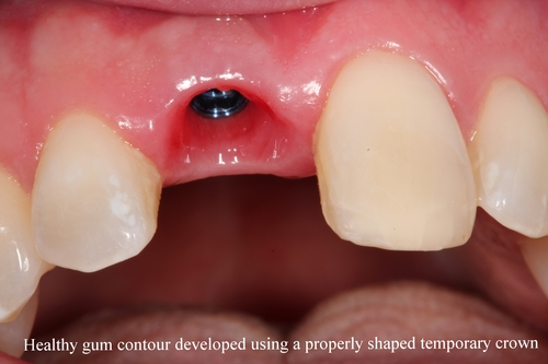 Before image of missing upper central incisor - Duxbury MA