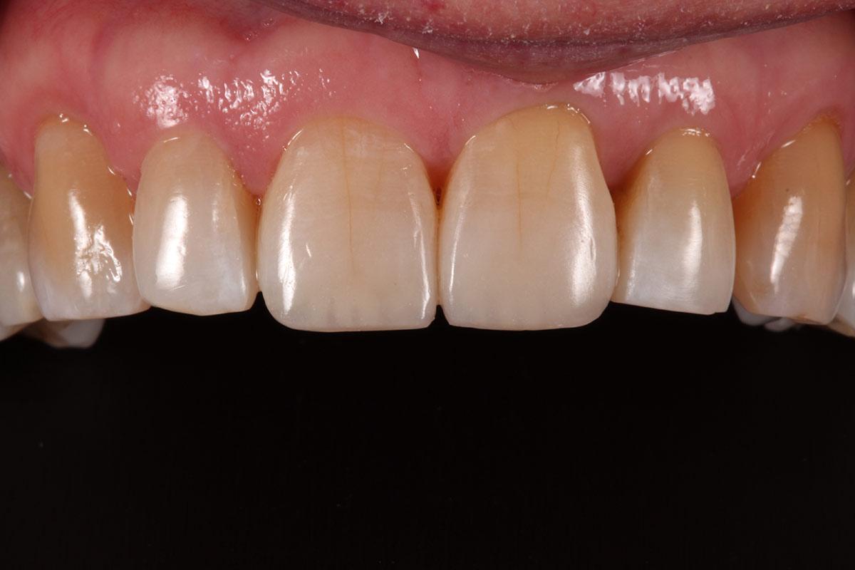 An image of teeth after dental bonding had been proformed - Duxbury MA
