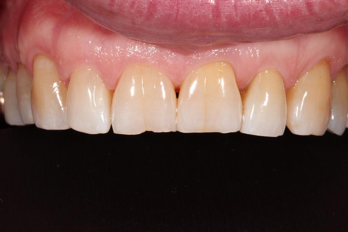 Teeth in need of Dental bonding - Duxbury MA